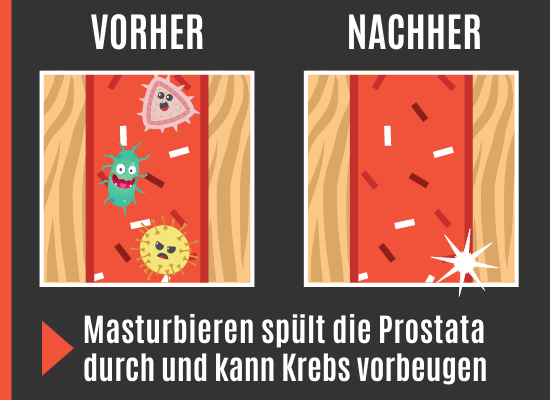 Masturbieren gegen Prostatakrebs