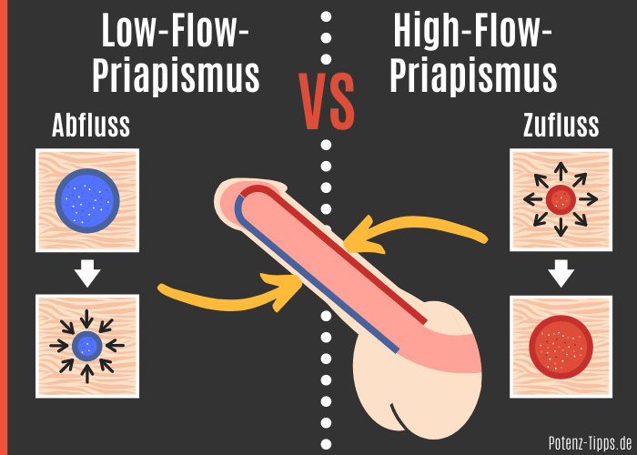 Low-Flow-Priapismus vs. High-Flow Priapismus (Dauererektion)