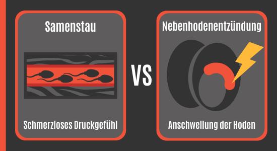 Samenstau vs. Nebenhodenentzündung