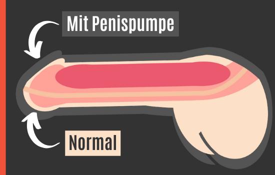 Erektion mit und ohne Penispumpe