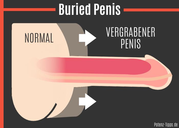 Buried Penis