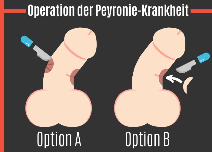 Operation der Peyronie-Krankheit