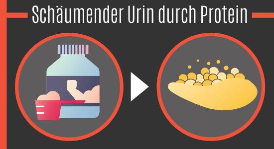 Schäumender Urin durch Protein