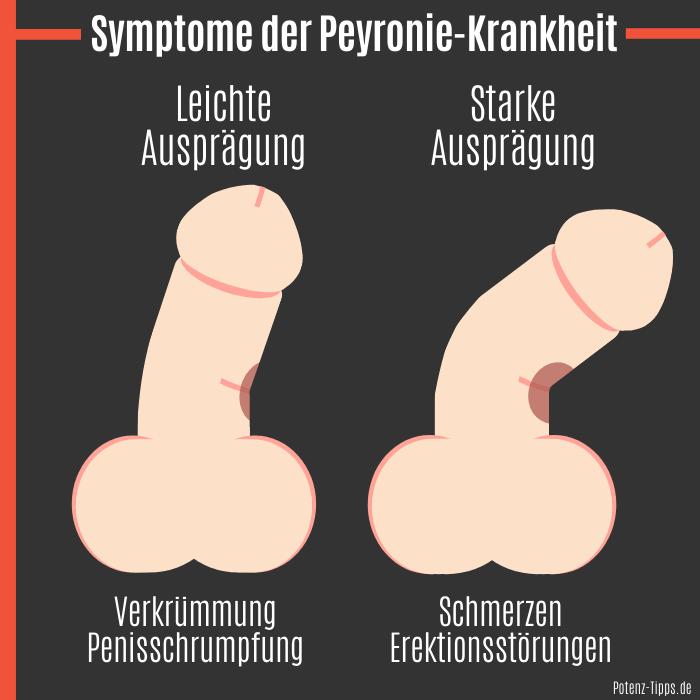 Symptome der Peyronie-Krankheit