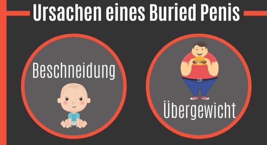 Ursachen eines Buried Penis