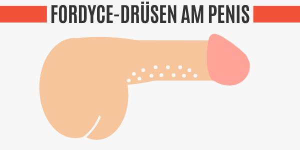 Fordyce-Drüsen am Penis