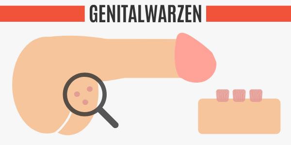 Genitalwarzen am Hoden