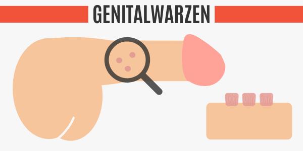 Genitalwarzen