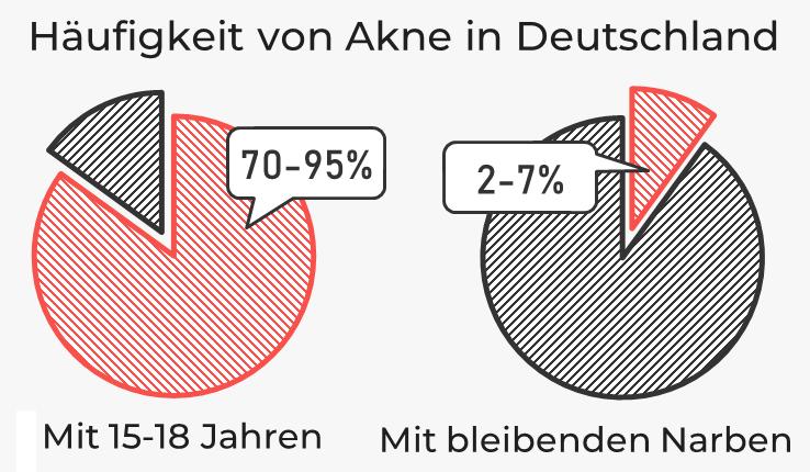 Häufigkeit von Akne in Deutschland