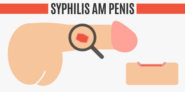 Syphilis am Penis