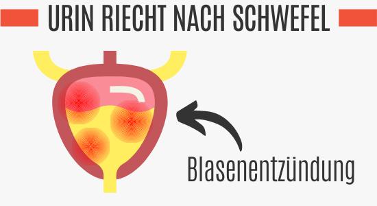 Blasenentzündung führt zu Schwefelgeruch im Harn