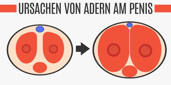 Erektion führt zu Adern am Penis