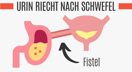 Fistel als Ursache des Schwefelgeruchs im Urin