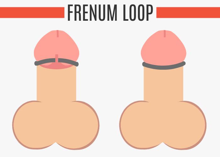 Frenum Loop