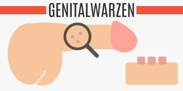 Genitalwarzen am Penis