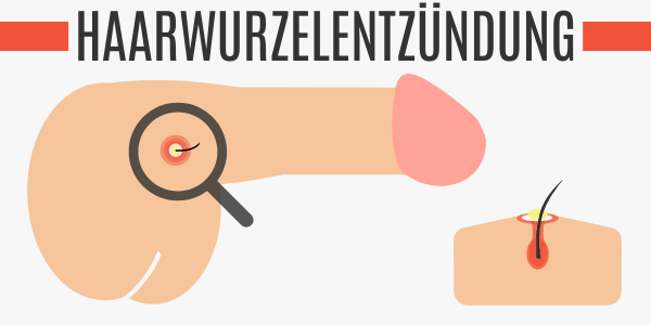 Haarwurzelentzündung am Penis