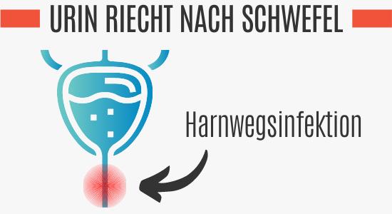 Harnwegsinfektion vs. Schwefelgeruch im Urin