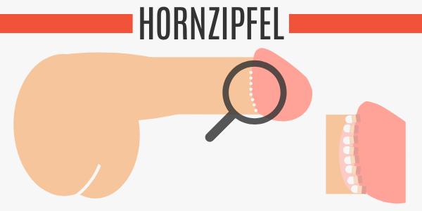 Hornzipfel