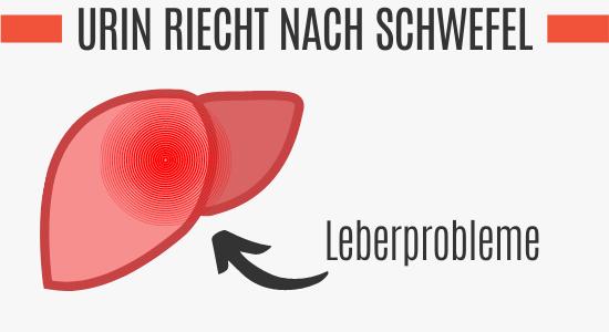 Leberprobleme können den Urin nach Schwefel riechen lassen