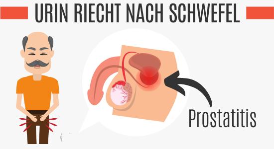 Prostatitis vs. Schwefelartiger Uringeruch
