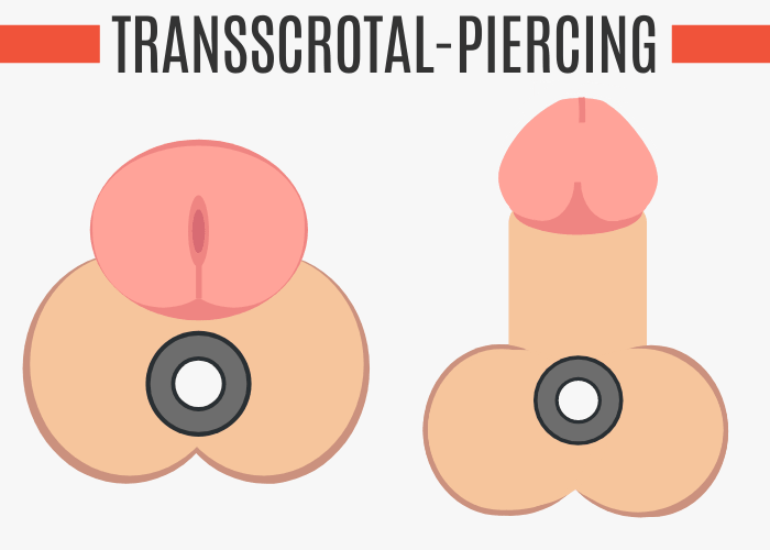 Transscrotal-Piercing