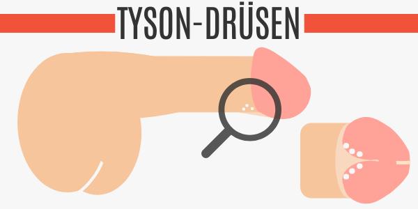 Tyson-Drüsen