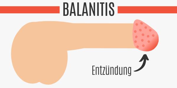 Balanitis