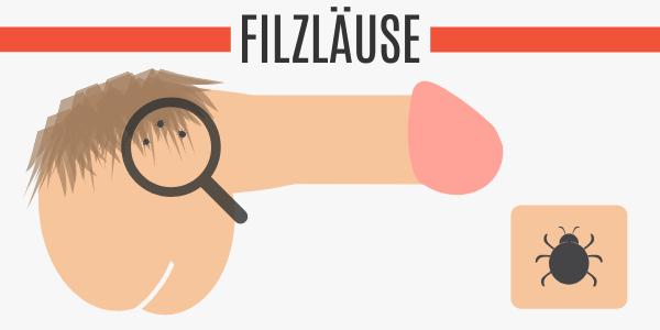 Filzläuse