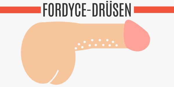 Fordyce-Drüsen
