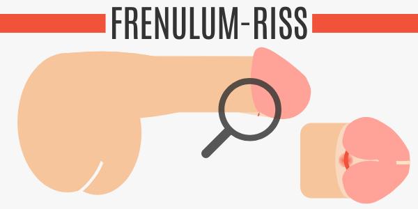 Frenulum-Riss