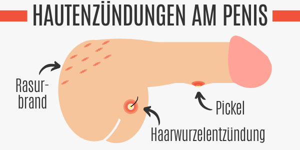 Hautentzündungen am Penis