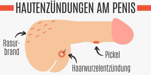 Hautentzündungen am Penis