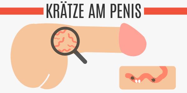 Krätze am Penis