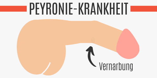 Peyronie-Krankheit