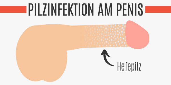 Pilzinfektion am Penis
