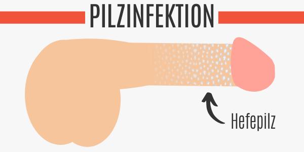 Pilzinfektion