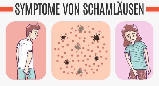 Symptome von Schamläusen