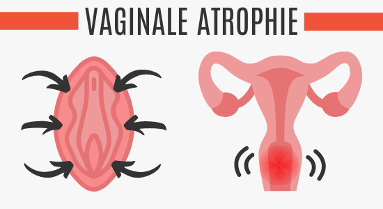 Vaginale Atrophie