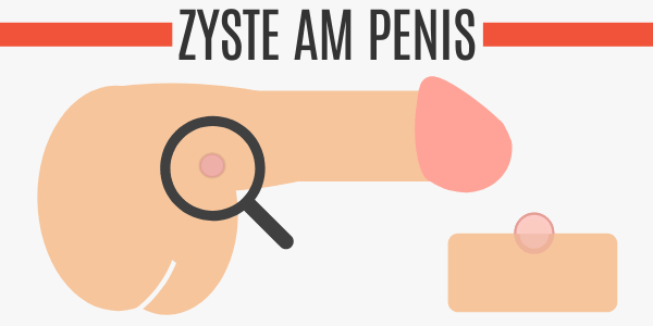 Zyste am Penis